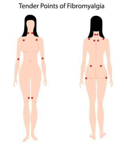 Fibromyalgia   tender points   st ives chiropractor   chiropractor   epstein chiropractors