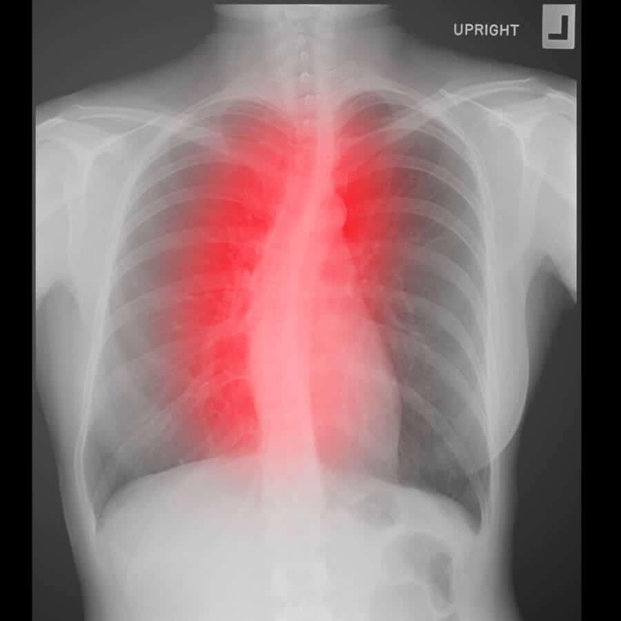 scoliosis | st ives chiropractor | epstein chiropractors