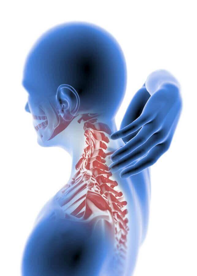 whiplash | st ives chiropractor |