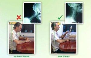 st ives chiropractor | ergonomic stand | epstein chiropractors